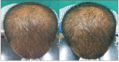 female pattern hair loss dutasteride dutasteride hair regrowth the best hair of 2018