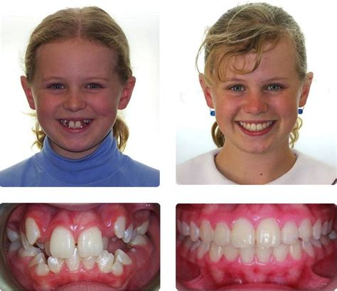 braces    braces    braces