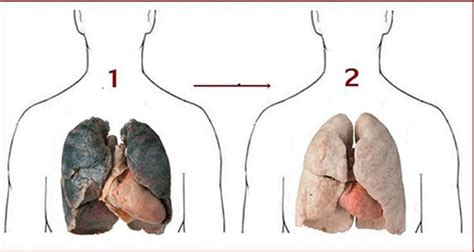 How To Detox Your Lungs After Quitting by Learn How To Detox Your Lungs After Quitting Using