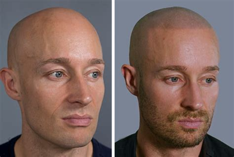 hair tattoo before and after receding hairlines alopecia and baldness would you get a