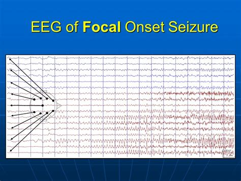 motor seizure focal motor seizure treatment epilepsy guide causes