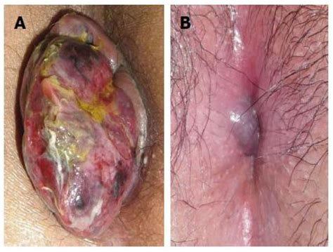 images of hemorrhoids treatment of hemorrhoids a coloproctologist s view