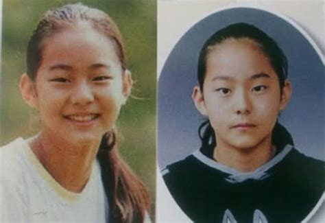 korean ps before and after