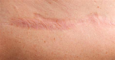cicatriz cicatrices escaras