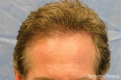 latest news on hair cloning hair cloning bernstein medical newhairstylesformen2014 com