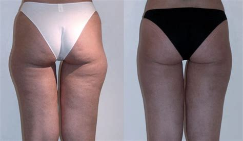eliminare cellulite interno coscia eliminare le tossine nel colon con due ingredienti