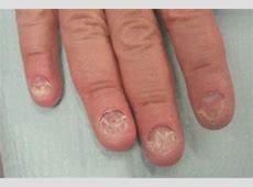 Fed Up With Fungal Infections In Monsoon?....Choose ... Jeremy Renner Fingernails