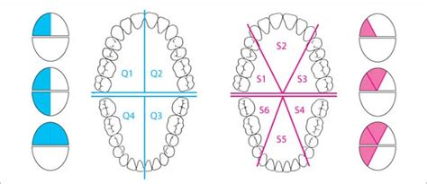 sextant of teeth therapy pocket dentistry