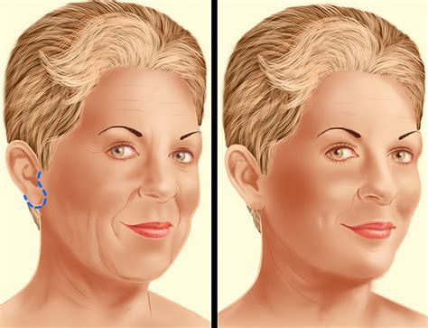 before after yanhee hospital facelift in thailand procedure steps yanhee hospital