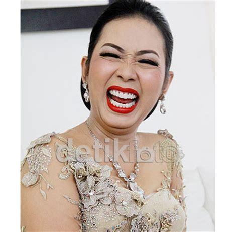 Biaya Pemutihan Gigi Veneer 5 selebriti indonesia dengan gigi putih dan rapi karena dilapisi veneer 5