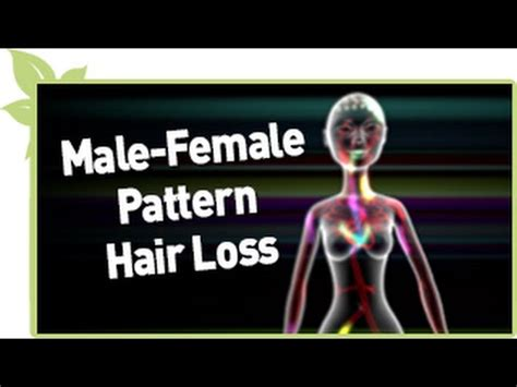 male pattern blindness youtube male female pattern natural hair loss youtube