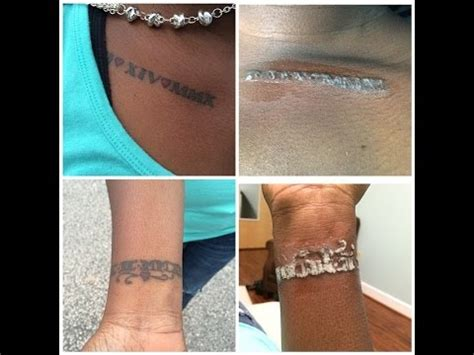 tattoo removal for black skin the self project removal 1