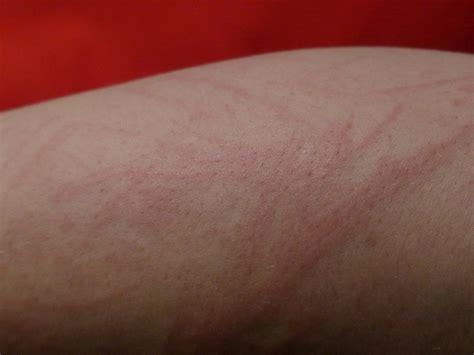 en la piel de remedios caseros para alergias de la piel