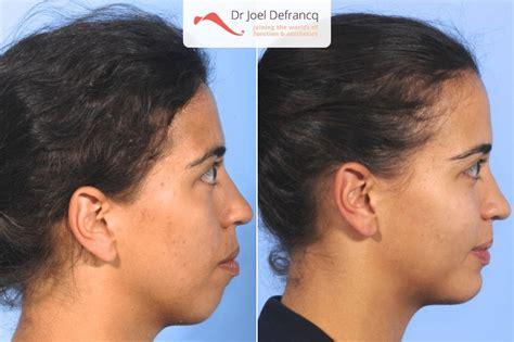 weak receeding chin tabita gummy smile weak chin jaw surgery dr jo 235 l