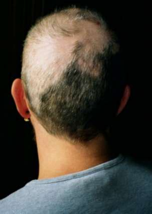 trichtolimania short thick hair pulling trichotillomania wikipedia