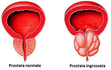 ipertrofia prostatica alimentazione ipertrofia prostatica urologo e andrologo verona e pisa