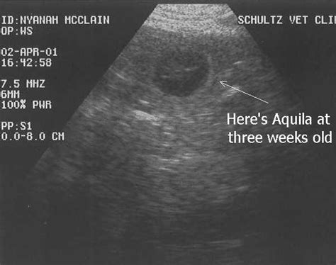 2 3 weeks pregnant but not detected on vaginal ultrasound 3 weeks pregnant ultrasound