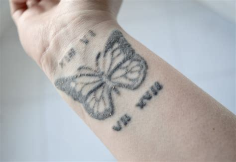 tattoo healing dermalize lifestyle review my laser tattoo removal journey