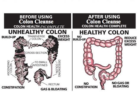 Should You Cleanse And Detox Your Colon by My Flp World