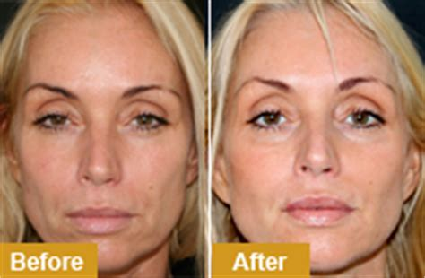 best procedure for sagging jowls dermal fillers and facial fillers in dublin