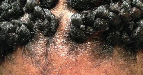 hair bumps from braids my traumatic box braid installation a desired beauty