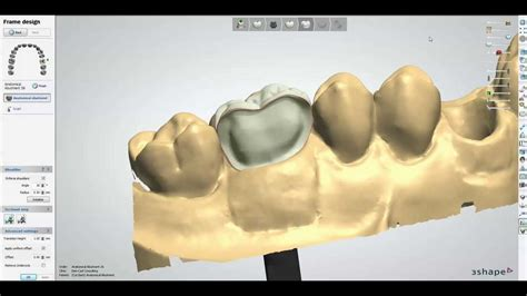 How Short To Cut The Back Crown   anatomical abutment cut back screw retained crown youtube
