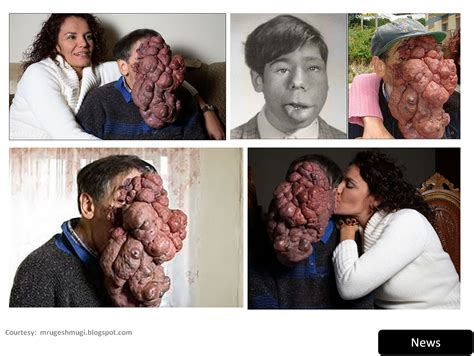 jose man with no face after surgery jose mestre before and after 2016 rachael edwards