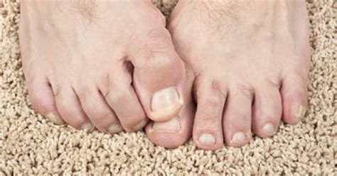 split toenail would a vitamin deficiency cause split toenails livestrong