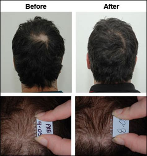 natural hair thin crown natural hair replacement products hair restoration hair