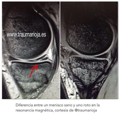 sana interno it diferencia entre un menisco sano y un menisco roto en una