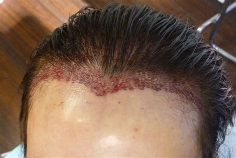 permanent head hair without surgery hair loss treatment hair growth best hair products