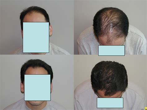 propecia or rogaine for frontal hair loss receding hairline finasteride results