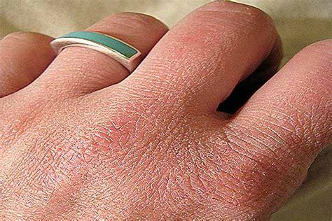 pelle disidratata alimentazione pelle secca e disidratazione cause e rimedi naturali