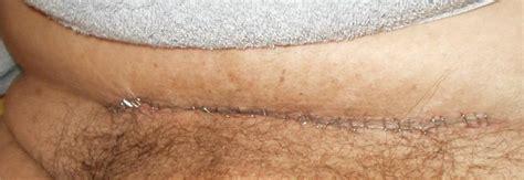 pain above c section scar caesarean scar pictures