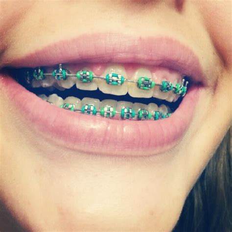 braces colors gallery braces color ideas for summer