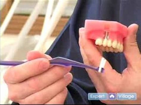 How Do I Clean A by How To Keep Teeth Healthy Cleaning Around Dental
