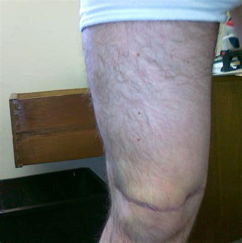 knee tattoo healing tips ink mark knee tattoo healing