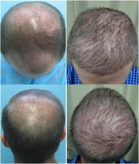 best hairtransplant in the world finding the best fue hair transplant doctor in the world