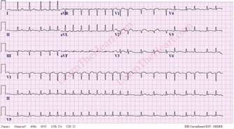 how to get out of afib at home atrial fibrillation with rapid ventricular rate exle 3
