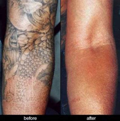 removing fresh tattoo removal fresh start free citizens journal
