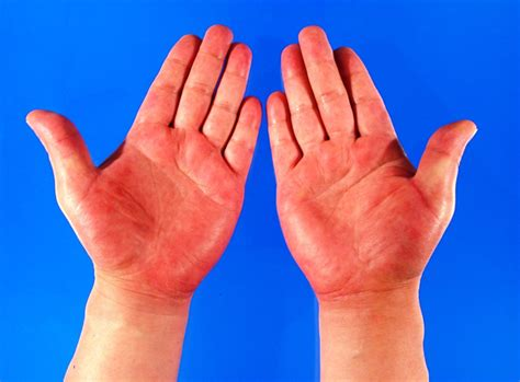 red hands the palm of your hands can reveal the hidden ailments and
