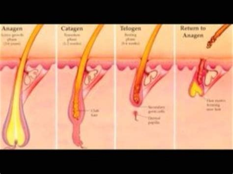 It Looks Like A Simple Ingrown Hair | healthy living goes deep into ingrown hairs