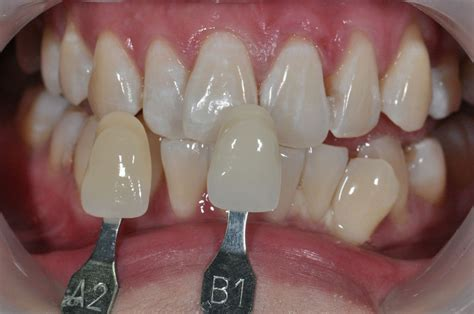 cases   office bleaching prestige dental care