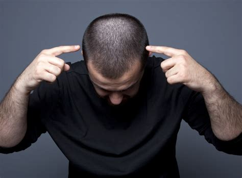 hair plugs for men men s hair transplants page 2