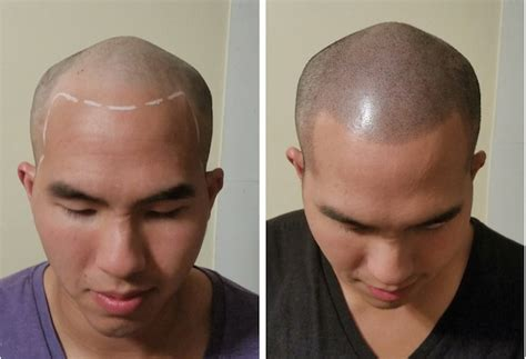 scalp micropigmentation to make hair ticker pictures hair tattoo the new toupee micropigmentation stylist
