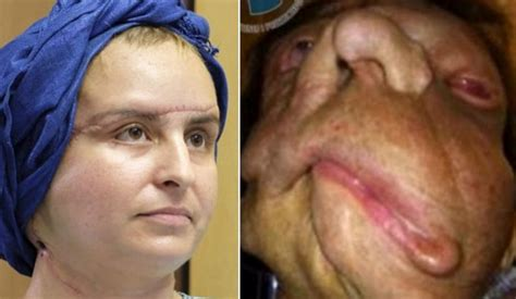 Has Disfigured Eyelids 2 by Who Was Disfigured By A Tumour