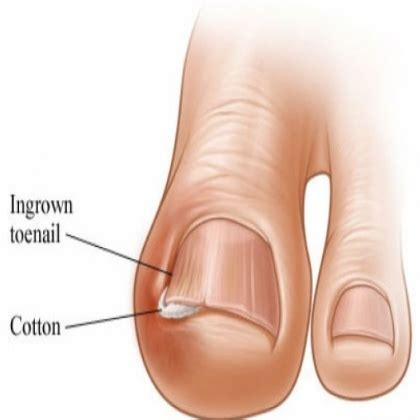 ingrown toenail treatment 6 best home remedies for ingrown toenails natural