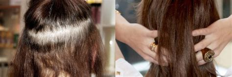 hair extensions for the crown area fine hair female pattern baldness this form of hair loss