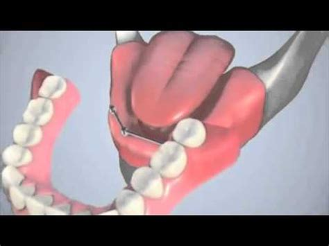 protesi mobile su impianti protesi mobile su impianti