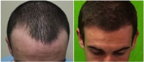 fue results with short hair fue hair transplant results dermhair clinic la 1 310 318